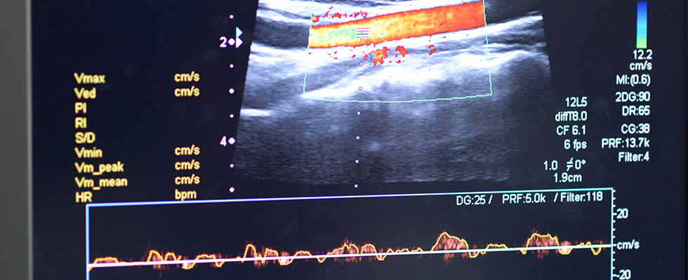 Ultrasound Use for Vascular Access and Basic Cardiac and Pulmonary Assessment for Nurses